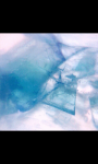 Coppor Sulphate